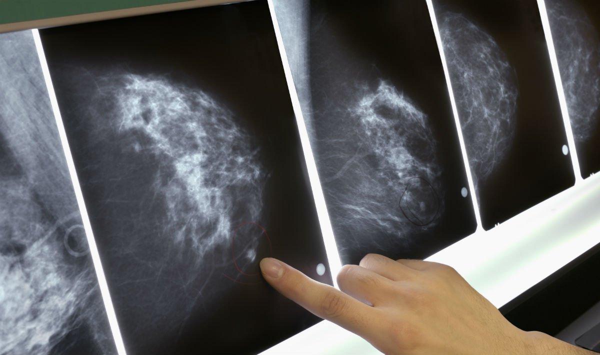 Tumore del seno: in 10 anni in Italia +43% di donne vive dopo la diagnosi