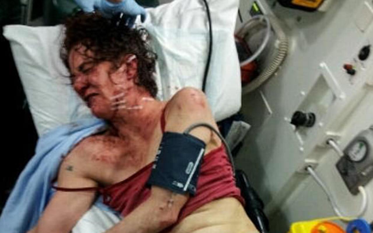 """Bournemouth, massacrata di botte con coltelli e forbici: """"Quei 20 minuti che hanno cambiato la mia vita"""""""