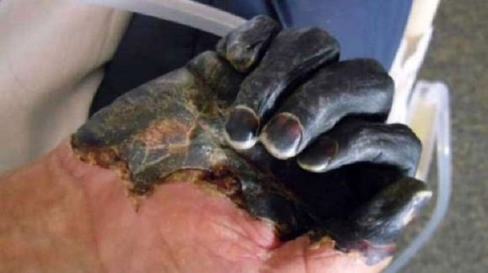 Cina, Oms: peste bubbonica in Mongolia non è una grave minaccia